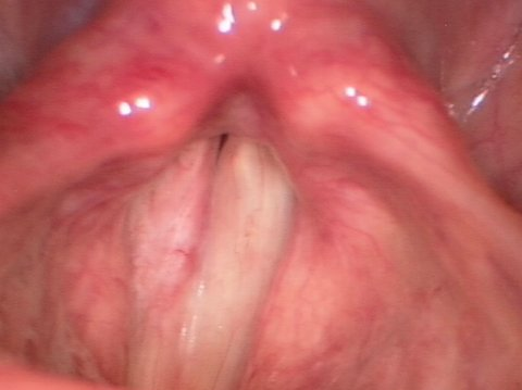 Vocal cord leukoplakia after surgery