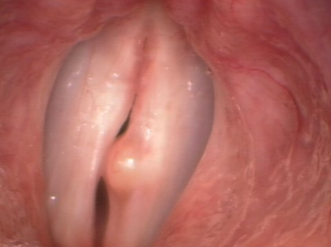 Medium-sized vocal cord cyst