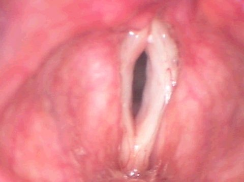 Vocal folds before anti-aging surgery